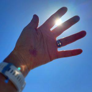 手のひらの傷