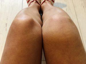 右膝が腫れて炎症